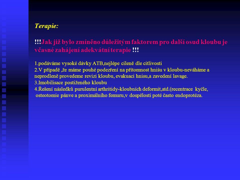 Terapie: !!!Jak již bylo zmíněno důležitým faktorem pro další osud kloubu je včasné zahájení adekvátní terapie !!.