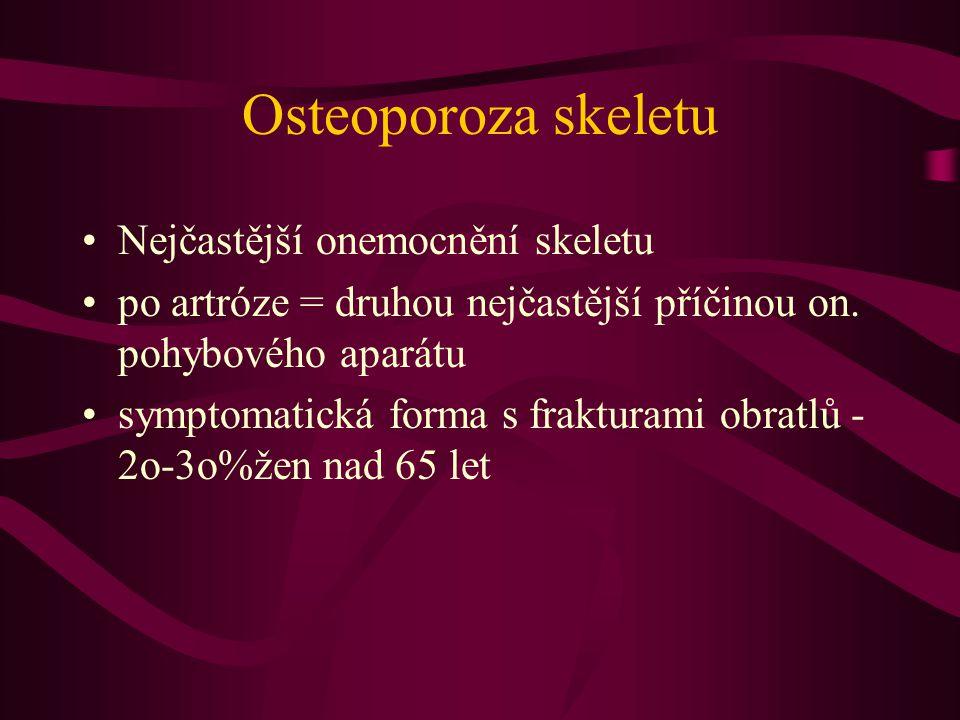 Osteoporoza skeletu Nejčastější onemocnění skeletu