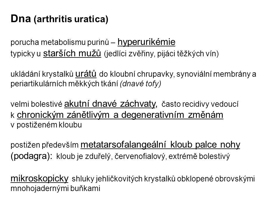 Dna (arthritis uratica)