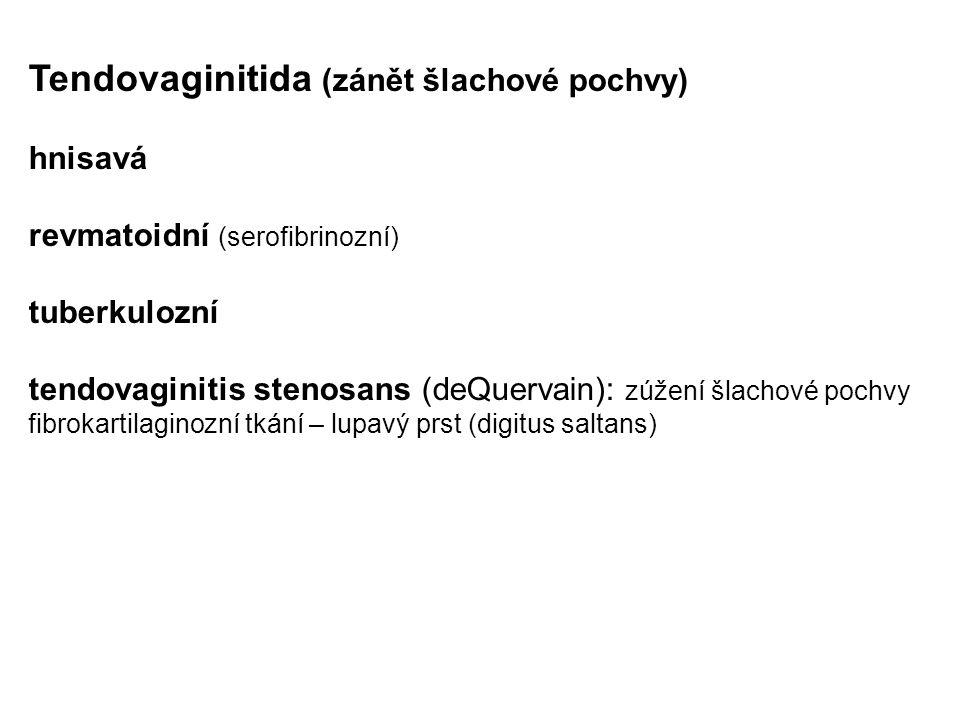 Tendovaginitida (zánět šlachové pochvy)