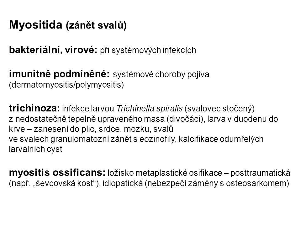 Myositida (zánět svalů)