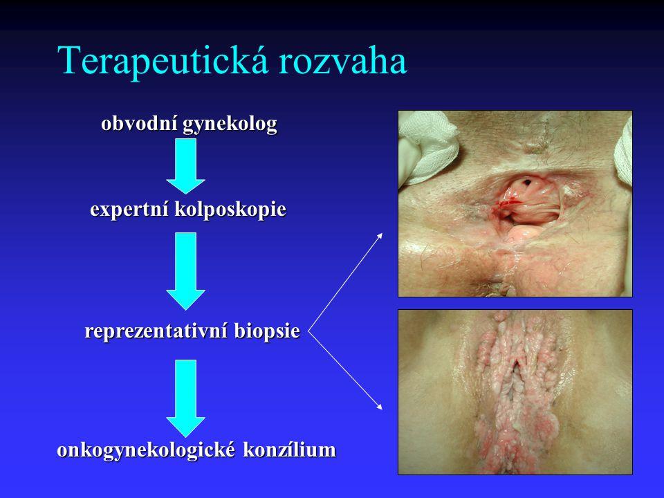 Terapeutická rozvaha obvodní gynekolog expertní kolposkopie