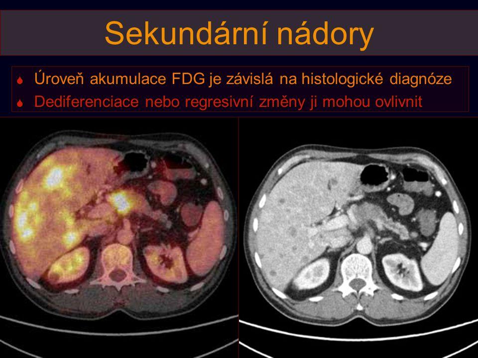 Sekundární nádory Úroveň akumulace FDG je závislá na histologické diagnóze.