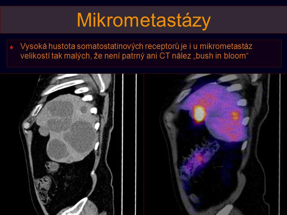 """Mikrometastázy Vysoká hustota somatostatinových receptorů je i u mikrometastáz velikostí tak malých, že není patrný ani CT nález """"bush in bloom"""