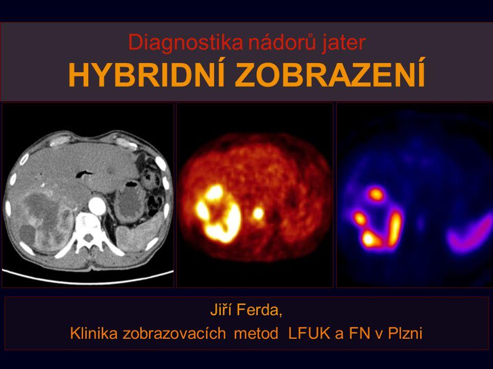 Diagnostika nádorů jater HYBRIDNÍ ZOBRAZENÍ
