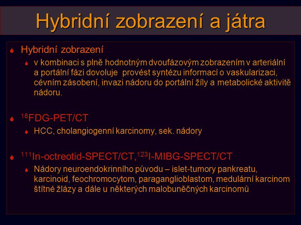 Hybridní zobrazení a játra