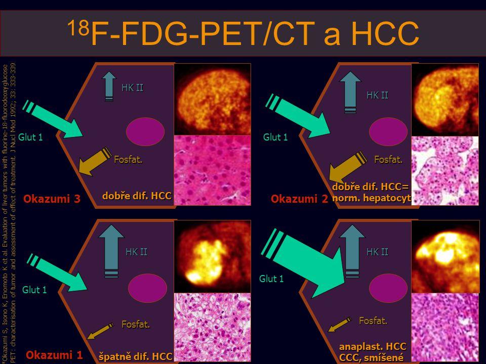 18F-FDG-PET/CT a HCC Okazumi 3 Okazumi 2 Okazumi 1 HK II HK II Glut 1