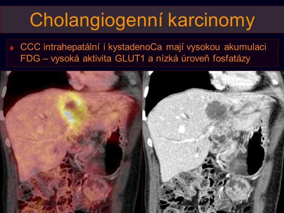 Cholangiogenní karcinomy