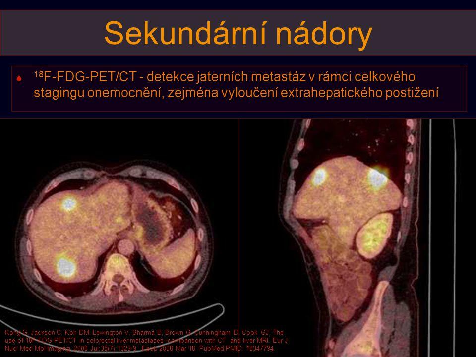 Sekundární nádory 18F-FDG-PET/CT - detekce jaterních metastáz v rámci celkového stagingu onemocnění, zejména vyloučení extrahepatického postižení.