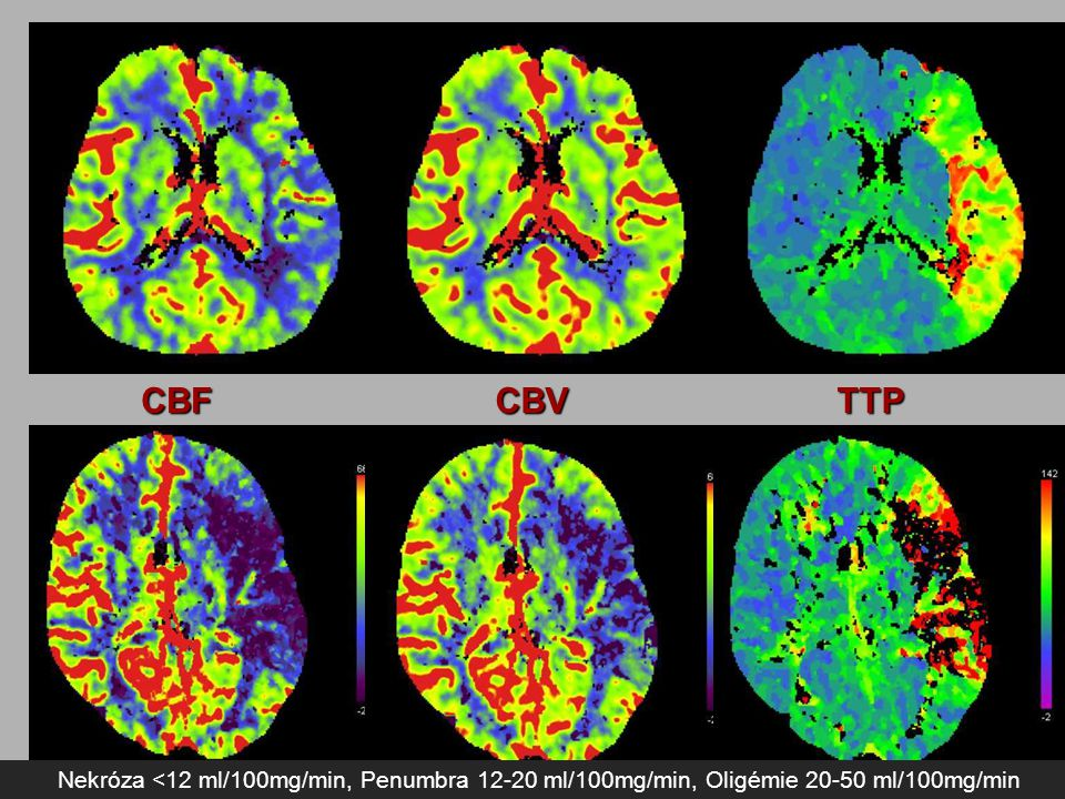 CBF CBV. TTP. Nekróza - destrukce buněk, nelze ovlivnit léčbou CBV odliší nekrózu od penumbry.