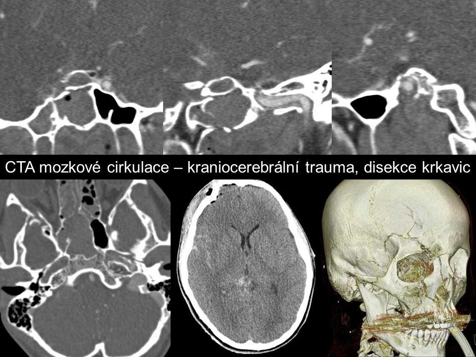 CTA mozkové cirkulace – kraniocerebrální trauma, disekce krkavic