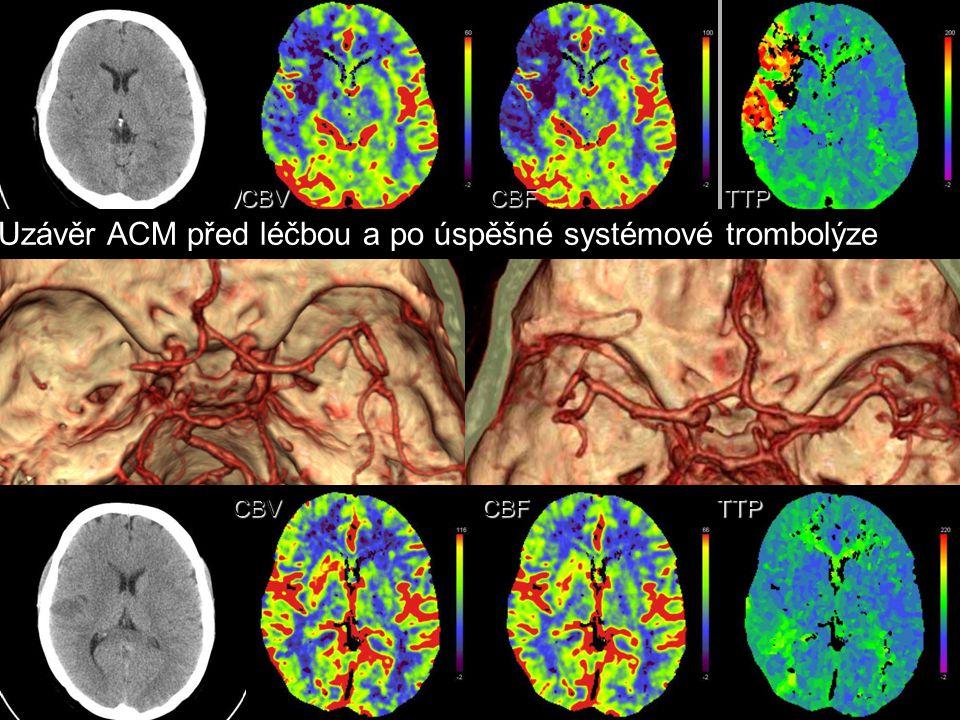 Uzávěr ACM před léčbou a po úspěšné systémové trombolýze