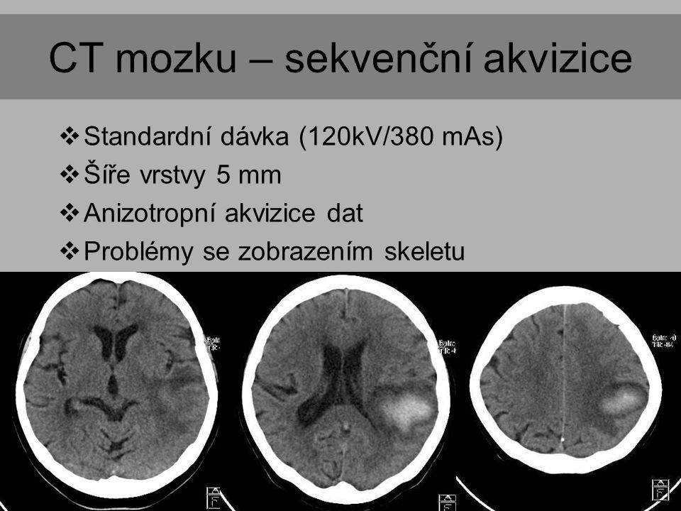 CT mozku – sekvenční akvizice