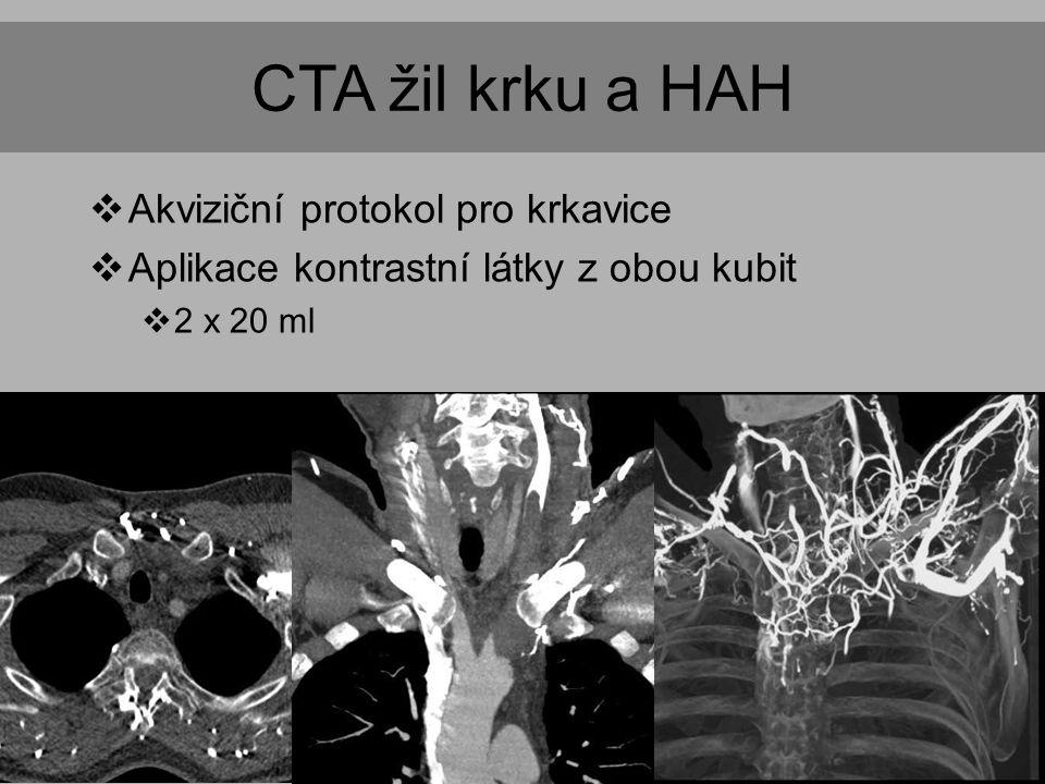 CTA žil krku a HAH Akviziční protokol pro krkavice