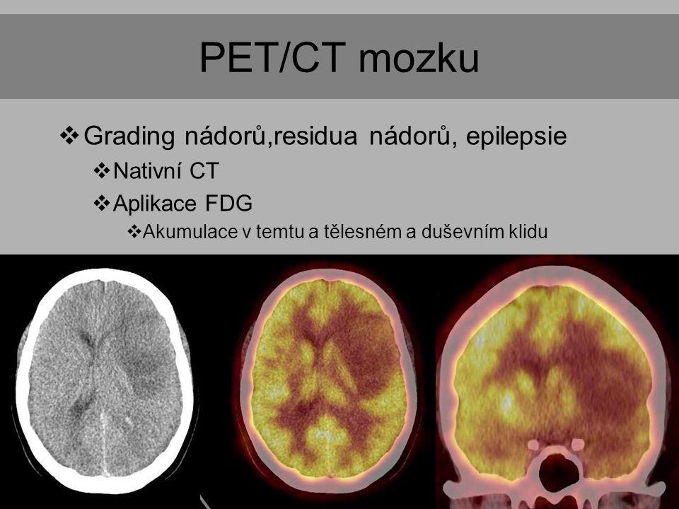 PET/CT mozku Grading nádorů,residua nádorů, epilepsie Nativní CT