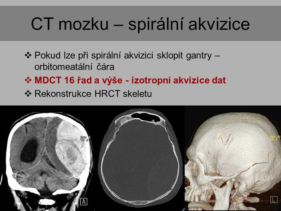 CT mozku – spirální akvizice