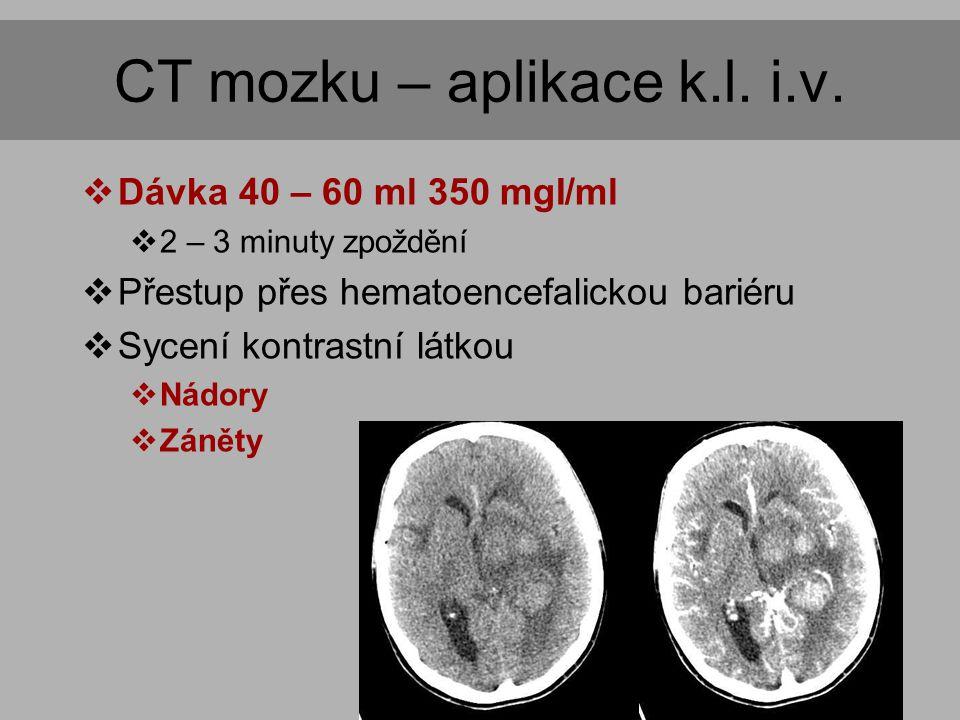 CT mozku – aplikace k.l. i.v.