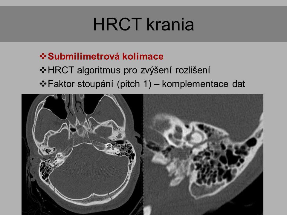 HRCT krania Indikace Submilimetrová kolimace