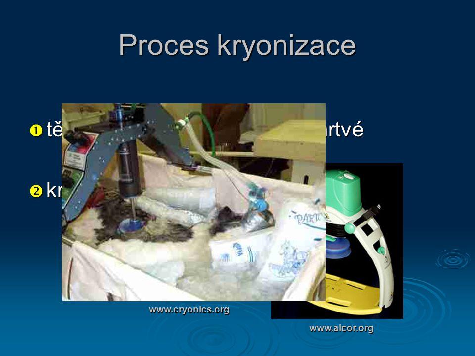 Proces kryonizace tělo musí být prohlášeno za mrtvé kryonická jednotka