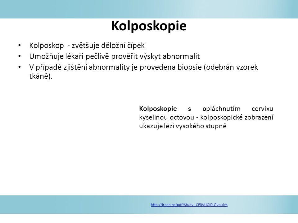 Kolposkopie Kolposkop - zvětšuje děložní čípek