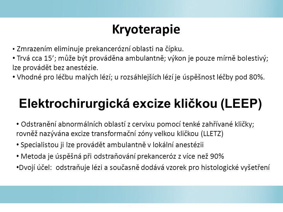 Elektrochirurgická excize kličkou (LEEP)