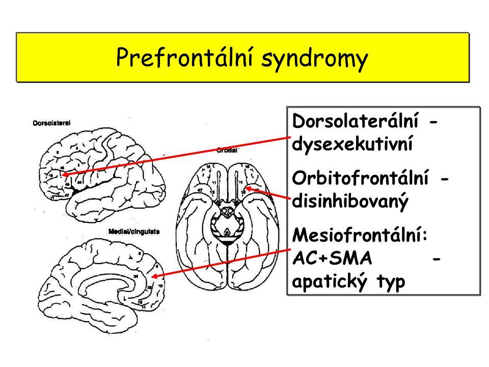 Prefrontální syndromy