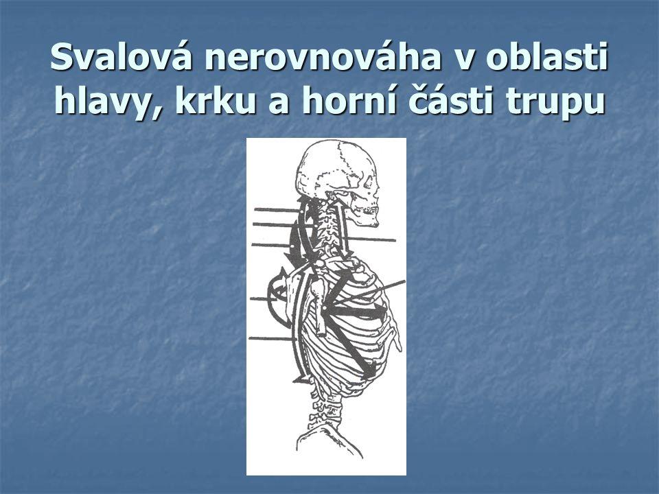 Svalová nerovnováha v oblasti hlavy, krku a horní části trupu