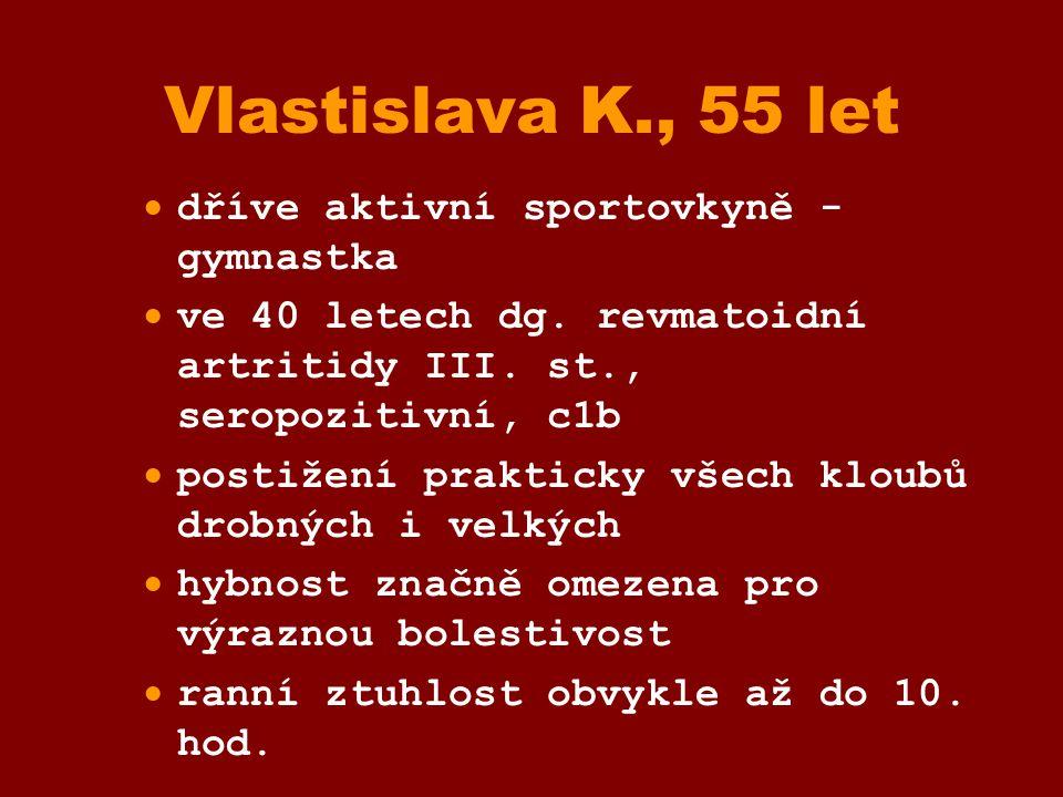 Vlastislava K., 55 let dříve aktivní sportovkyně - gymnastka