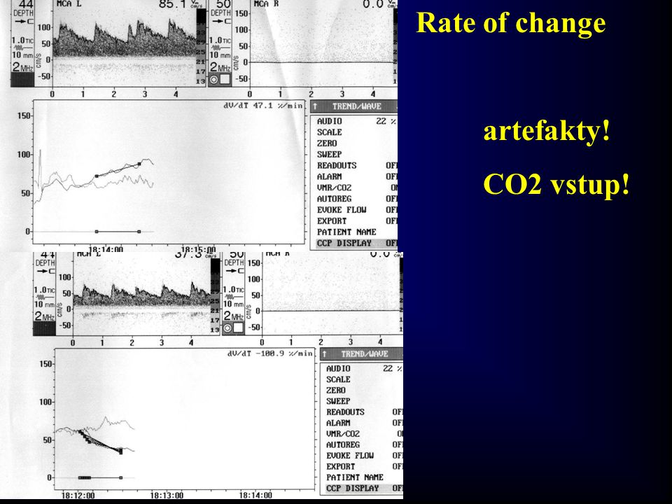 Rate of change artefakty! CO2 vstup!