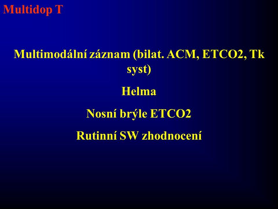 Multimodální záznam (bilat. ACM, ETCO2, Tk syst)
