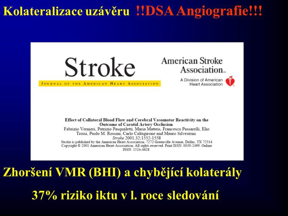 Kolateralizace uzávěru !!DSA Angiografie!!!