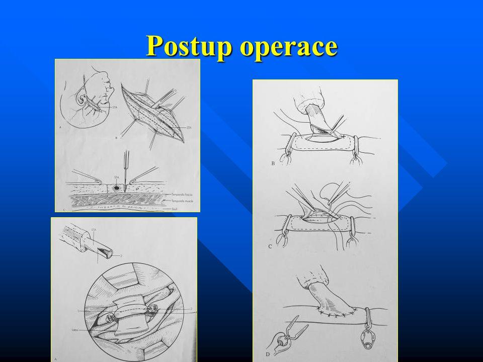 Postup operace