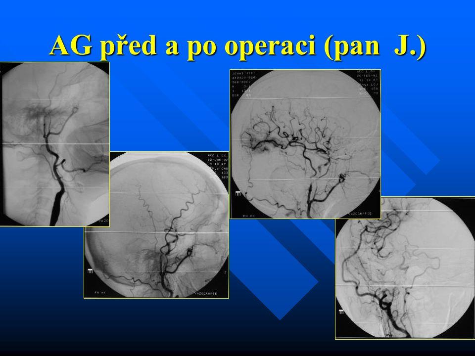 AG před a po operaci (pan J.)