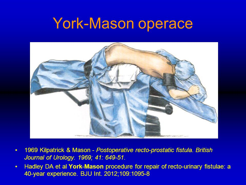 York-Mason operace 1969 Kilpatrick & Mason - Postoperative recto-prostatic fistula. British Journal of Urology. 1969; 41: 649-51.