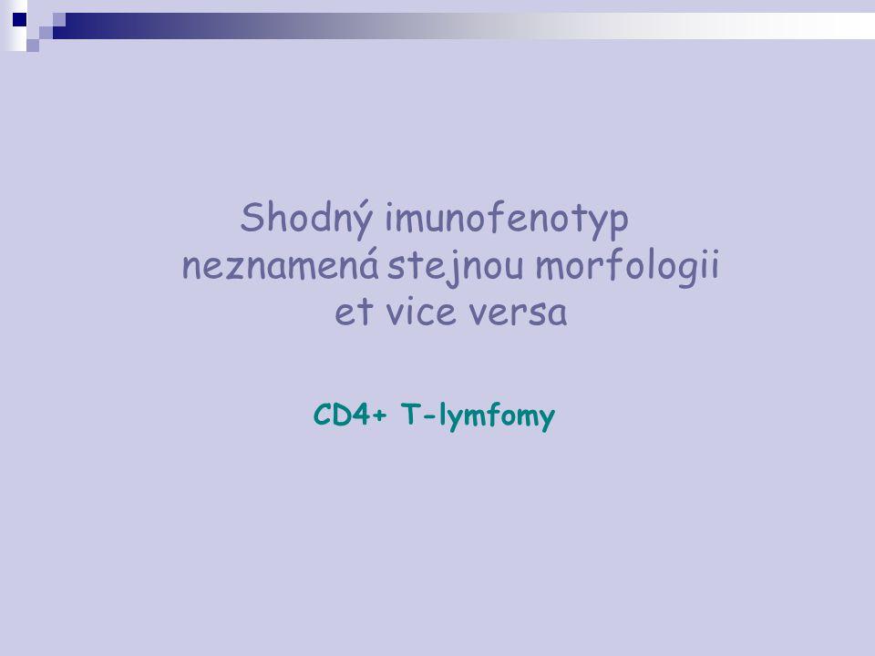 Shodný imunofenotyp neznamená stejnou morfologii et vice versa