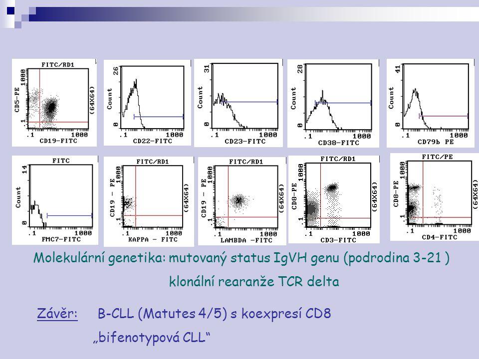 Molekulární genetika: mutovaný status IgVH genu (podrodina 3-21 )
