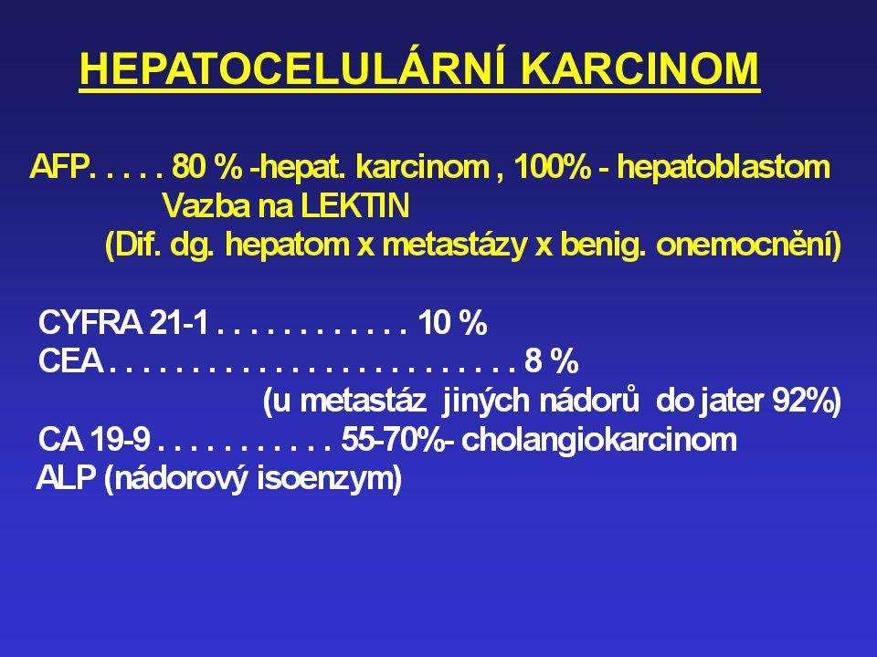HEPATOCELULÁRNÍ KARCINOM