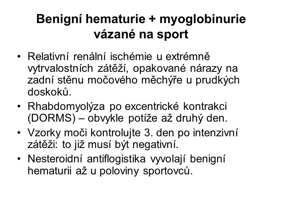 Benigní hematurie + myoglobinurie vázané na sport