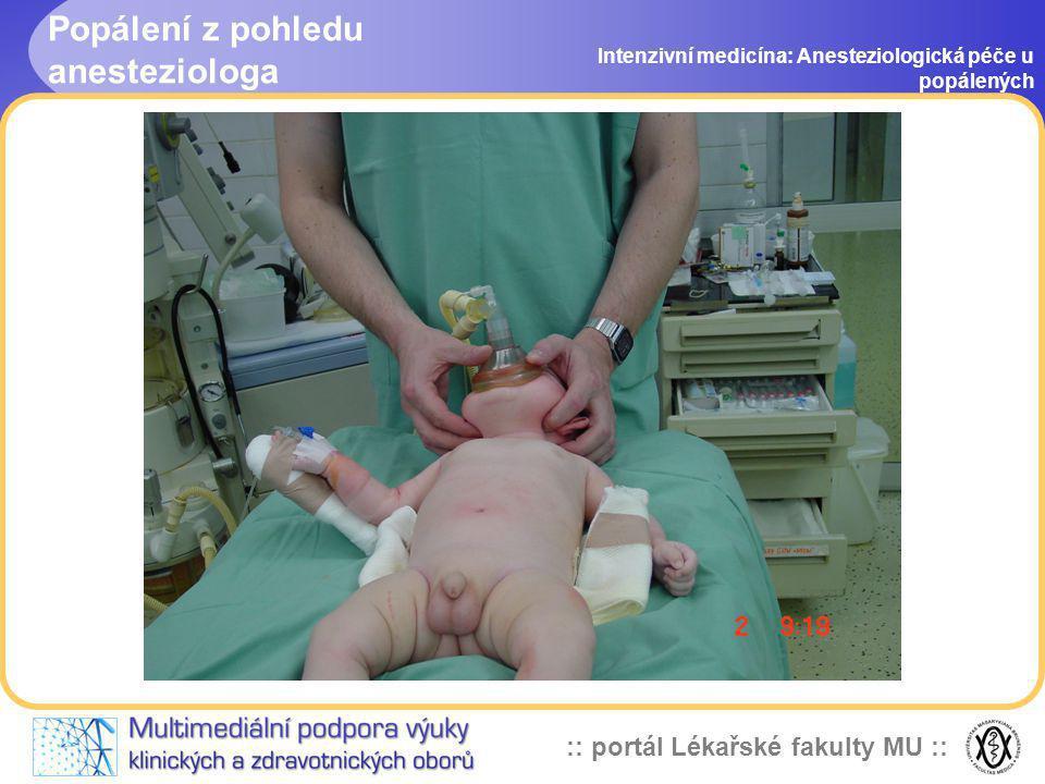 Popálení z pohledu anesteziologa