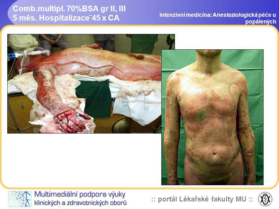 Comb.multipl. 70%BSA gr II, III 5 měs. Hospitalizace¨45 x CA