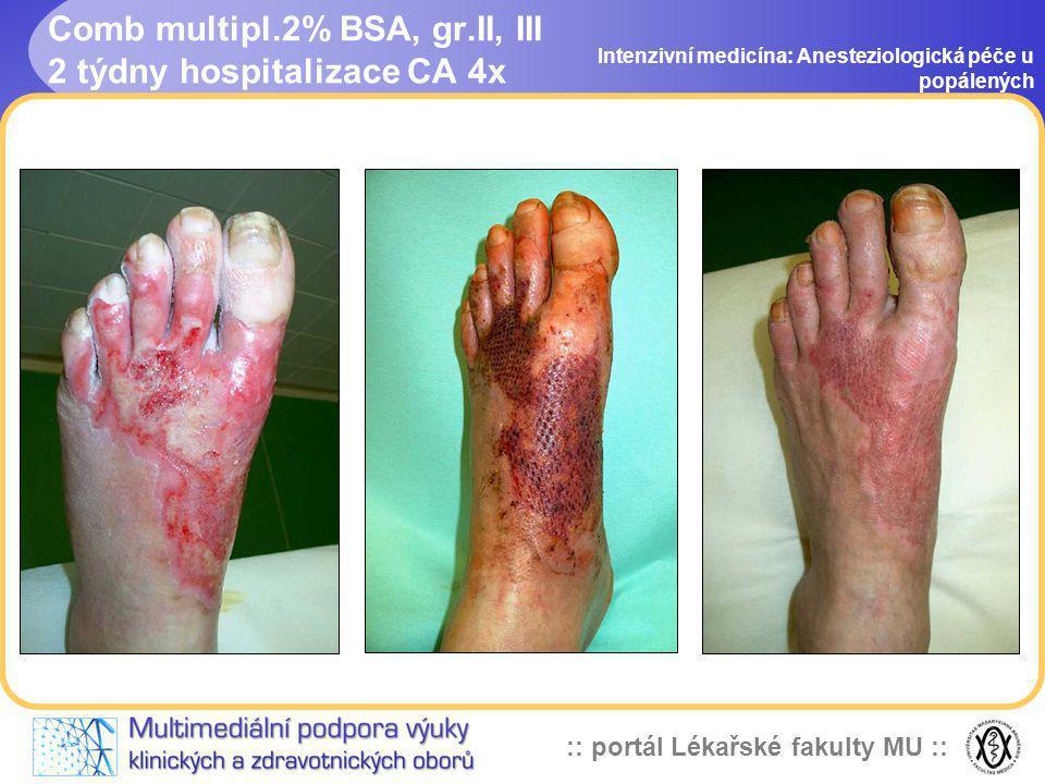 Comb multipl.2% BSA, gr.II, III 2 týdny hospitalizace CA 4x