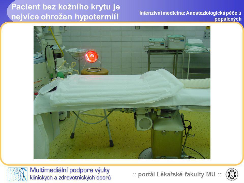 Pacient bez kožního krytu je nejvíce ohrožen hypotermií!