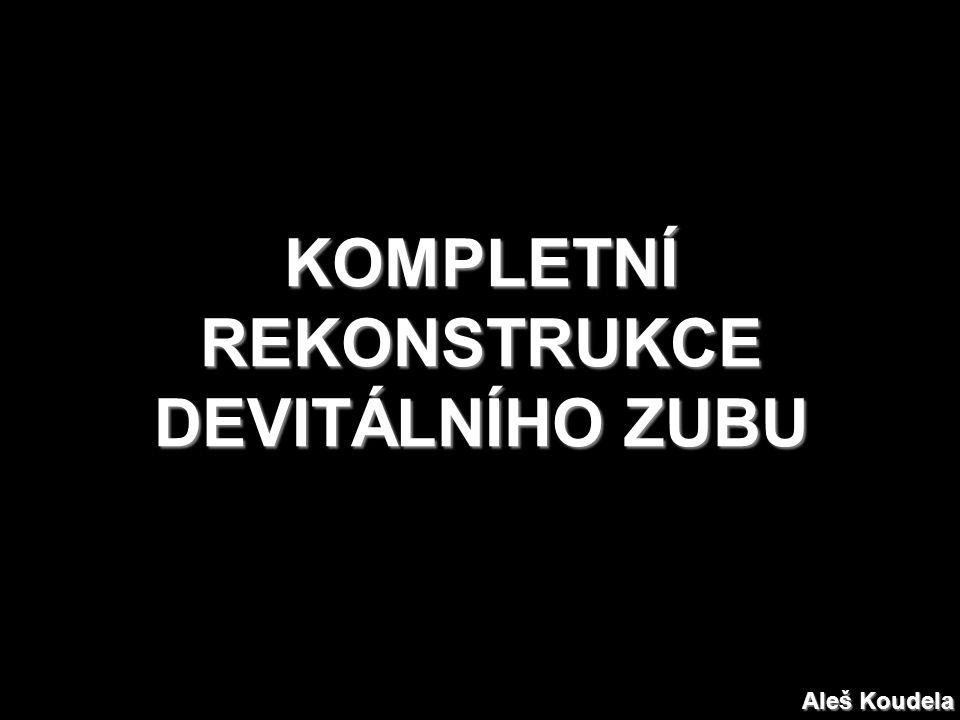 KOMPLETNÍ REKONSTRUKCE DEVITÁLNÍHO ZUBU