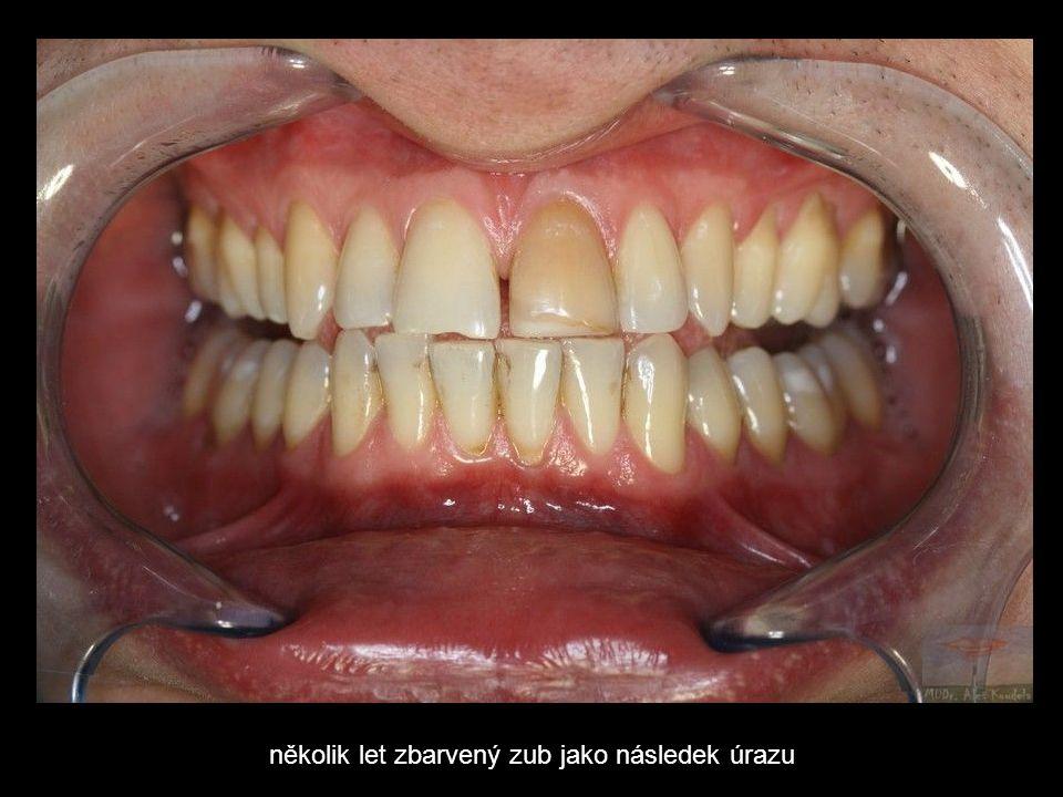 několik let zbarvený zub jako následek úrazu