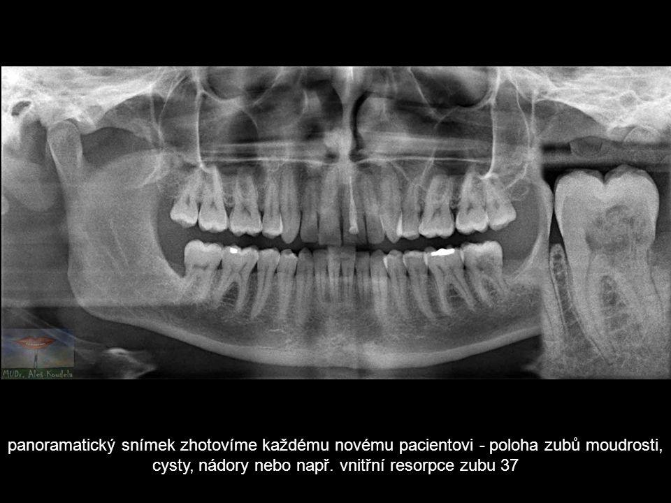 panoramatický snímek zhotovíme každému novému pacientovi - poloha zubů moudrosti, cysty, nádory nebo např.