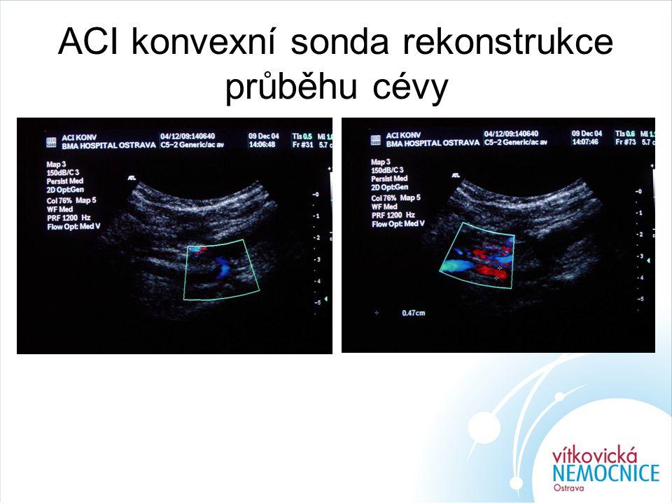 ACI konvexní sonda rekonstrukce průběhu cévy