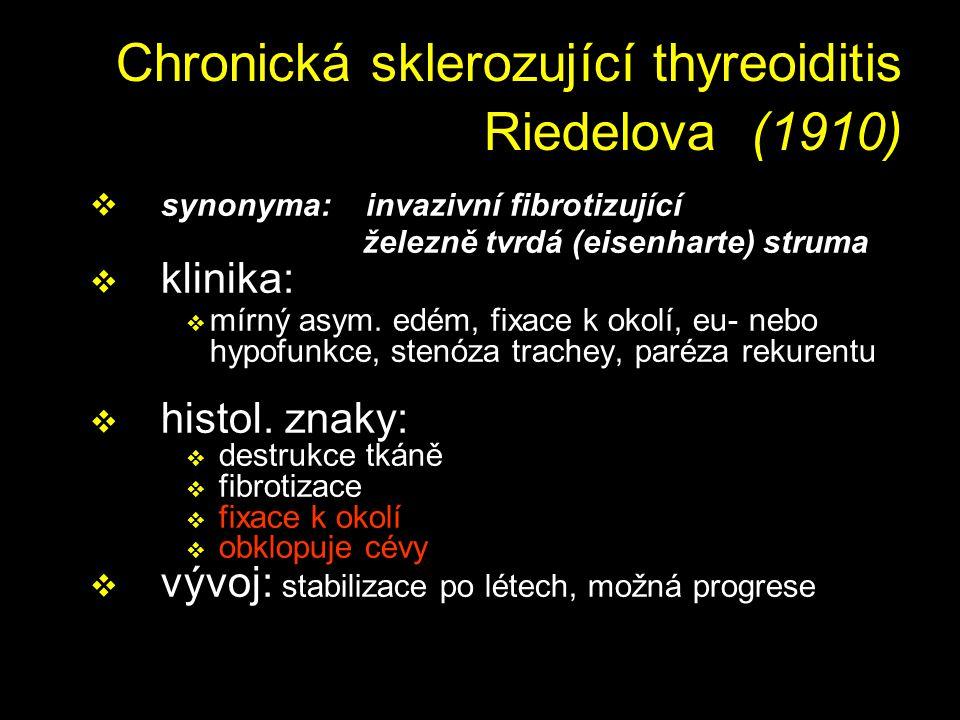 Chronická sklerozující thyreoiditis Riedelova (1910)
