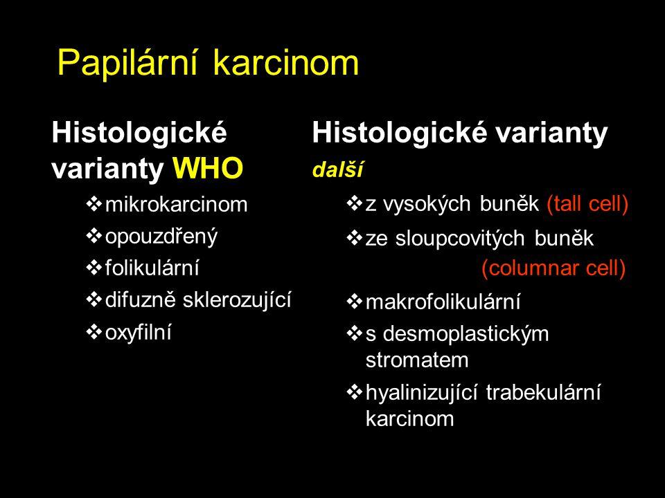 Papilární karcinom Histologické varianty WHO Histologické varianty