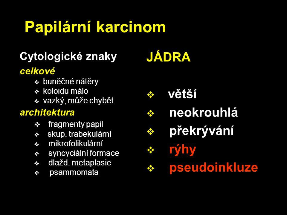 Papilární karcinom JÁDRA větší neokrouhlá překrývání rýhy