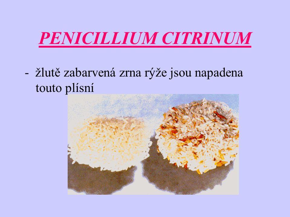 PENICILLIUM CITRINUM - žlutě zabarvená zrna rýže jsou napadena touto plísní